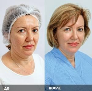 лазерное омоложение до и после фото