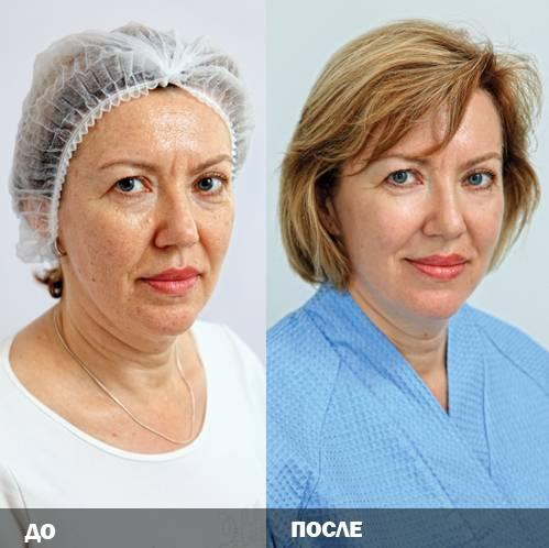 На сколько лет хватает круговой подтяжки лица